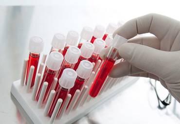 Новый анализ крови поможет узнать о риске рецидива рака